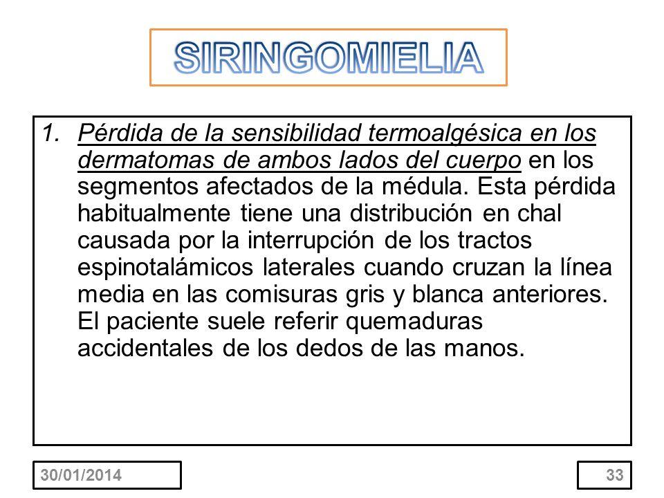 1.Pérdida de la sensibilidad termoalgésica en los dermatomas de ambos lados del cuerpo en los segmentos afectados de la médula. Esta pérdida habitualm