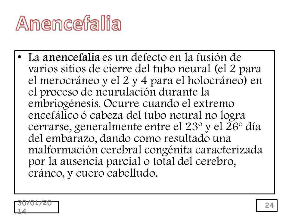La anencefalia es un defecto en la fusión de varios sitios de cierre del tubo neural (el 2 para el merocráneo y el 2 y 4 para el holocráneo) en el proceso de neurulación durante la embriogénesis.