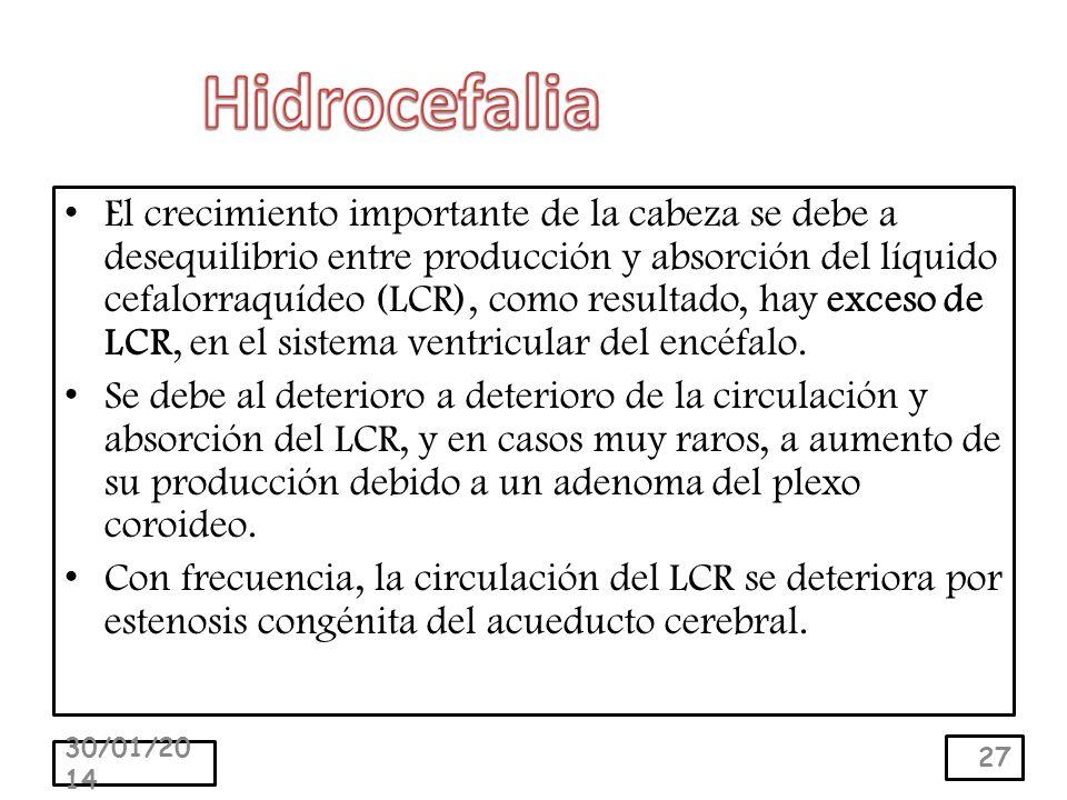El crecimiento importante de la cabeza se debe a desequilibrio entre producción y absorción del líquido cefalorraquídeo (LCR), como resultado, hay exceso de LCR, en el sistema ventricular del encéfalo.
