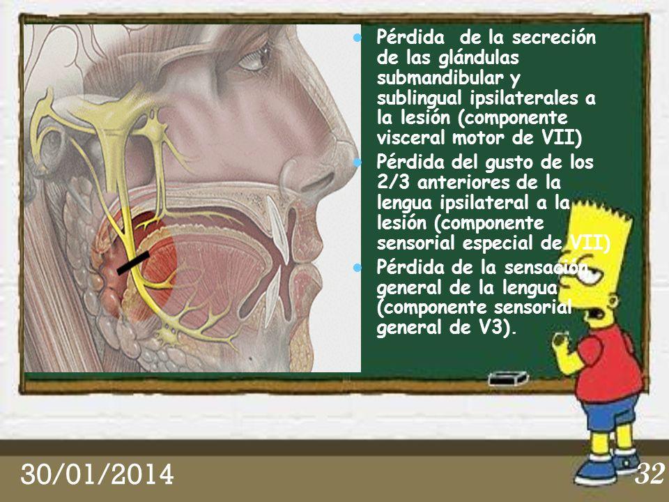 30/01/2014 32 Pérdida de la secreción de las glándulas submandibular y sublingual ipsilaterales a la lesión (componente visceral motor de VII) Pérdida