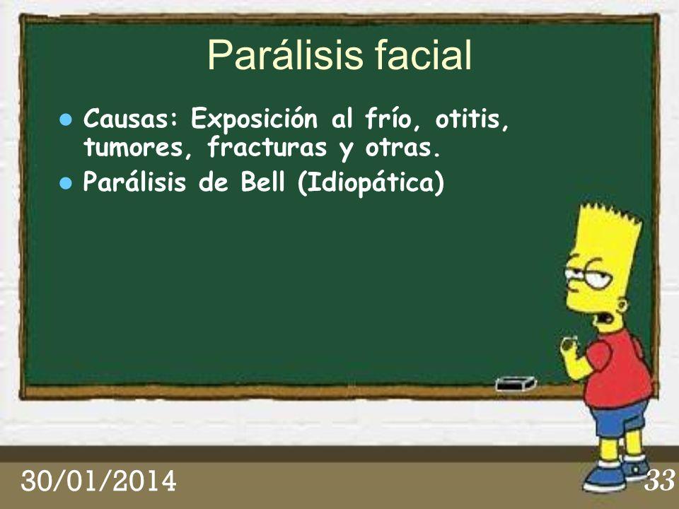 30/01/2014 33 Parálisis facial Causas: Exposición al frío, otitis, tumores, fracturas y otras. Parálisis de Bell (Idiopática)