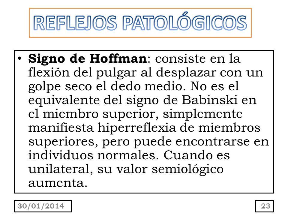 Signo de Hoffman : consiste en la flexión del pulgar al desplazar con un golpe seco el dedo medio. No es el equivalente del signo de Babinski en el mi