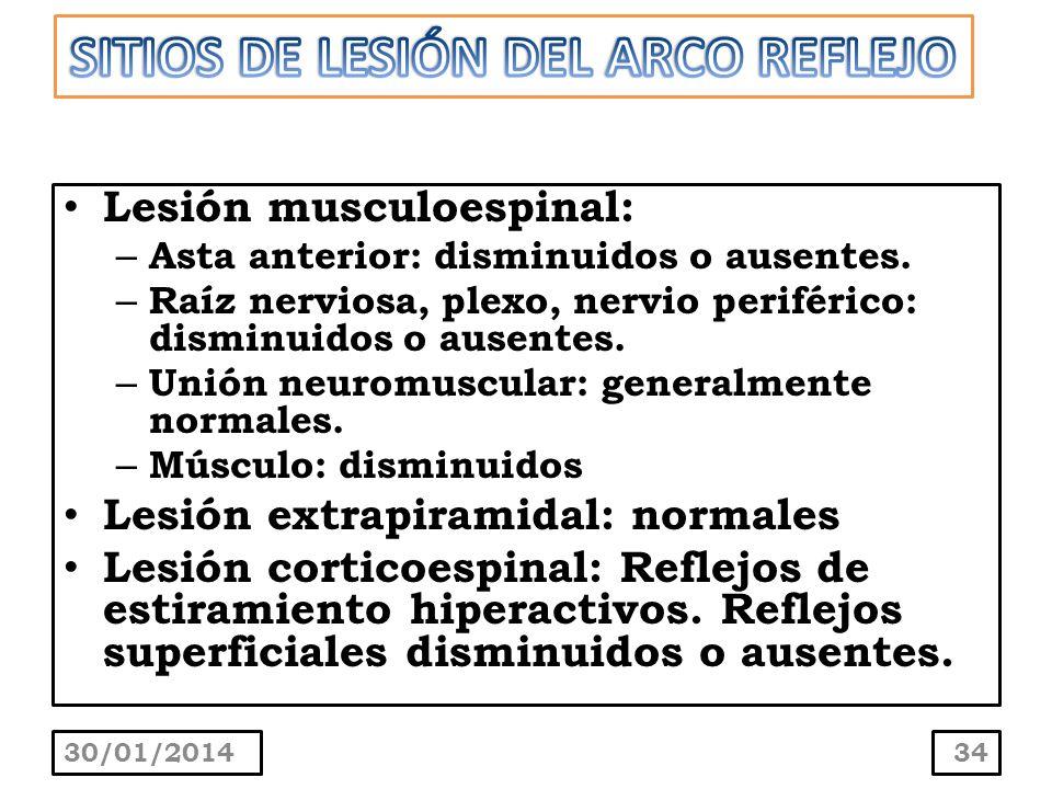 Lesión musculoespinal: – Asta anterior: disminuidos o ausentes. – Raíz nerviosa, plexo, nervio periférico: disminuidos o ausentes. – Unión neuromuscul
