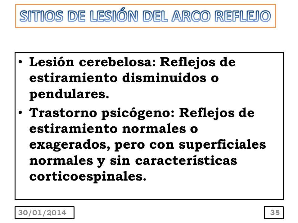 Lesión cerebelosa: Reflejos de estiramiento disminuidos o pendulares. Trastorno psicógeno: Reflejos de estiramiento normales o exagerados, pero con su