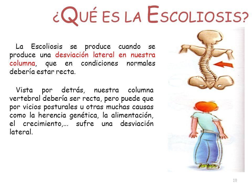 ¿ Q UÉ ES LA E SCOLIOSIS? 10 La Escoliosis se produce cuando se produce una desviación lateral en nuestra columna, que en condiciones normales debería