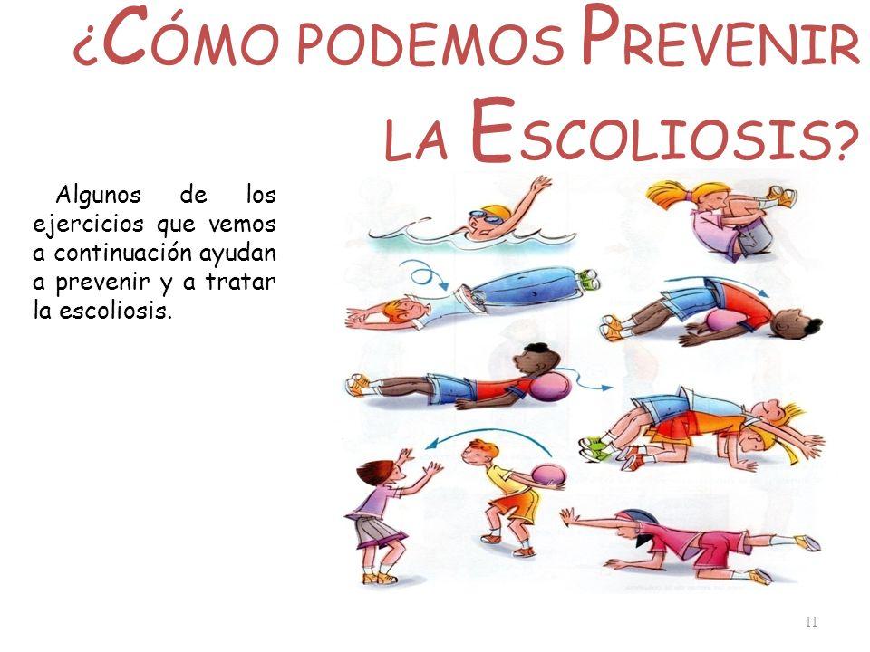 ¿ C ÓMO PODEMOS P REVENIR LA E SCOLIOSIS? 11 Algunos de los ejercicios que vemos a continuación ayudan a prevenir y a tratar la escoliosis.