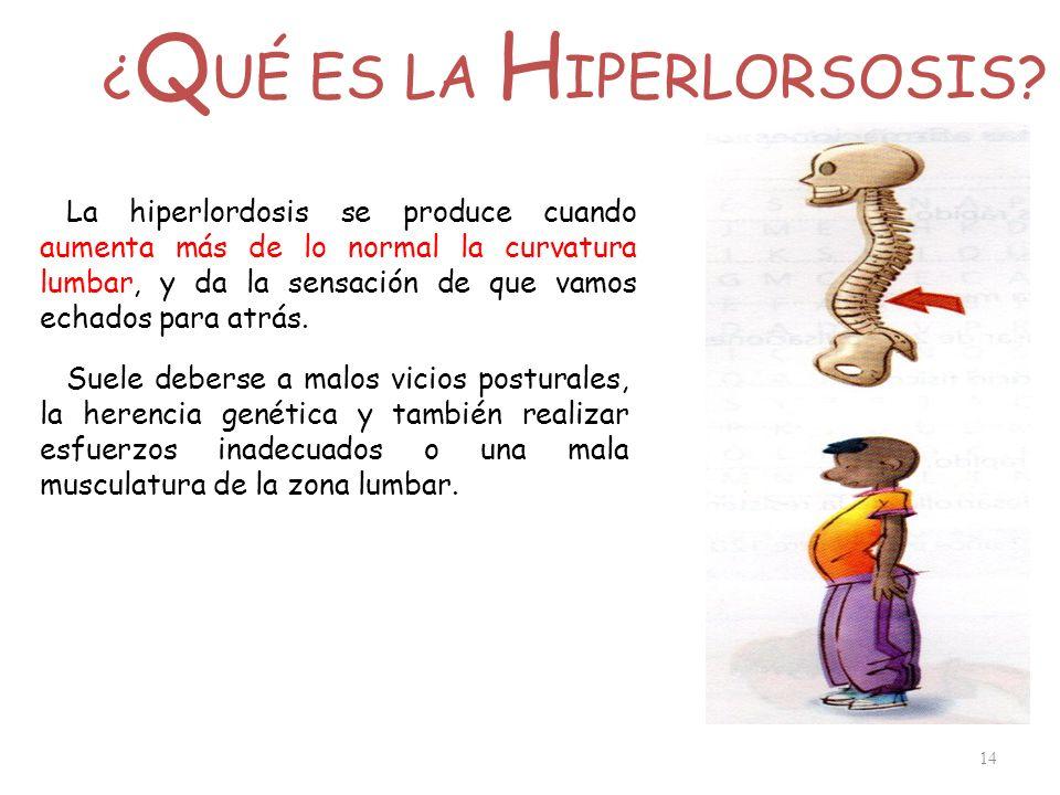 ¿ Q UÉ ES LA H IPERLORSOSIS? 14 La hiperlordosis se produce cuando aumenta más de lo normal la curvatura lumbar, y da la sensación de que vamos echado