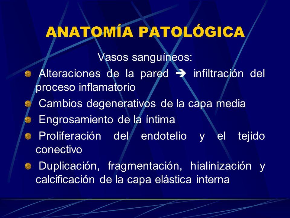 ANATOMÍA PATOLÓGICA Vasos sanguíneos: Alteraciones de la pared infiltración del proceso inflamatorio Cambios degenerativos de la capa media Engrosamie