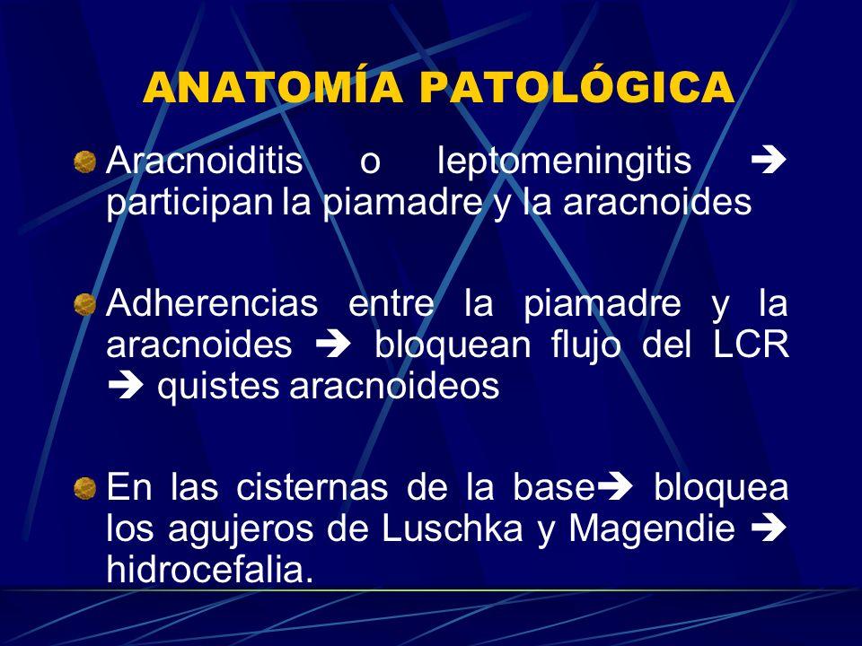 ANATOMÍA PATOLÓGICA Aracnoiditis o leptomeningitis participan la piamadre y la aracnoides Adherencias entre la piamadre y la aracnoides bloquean flujo