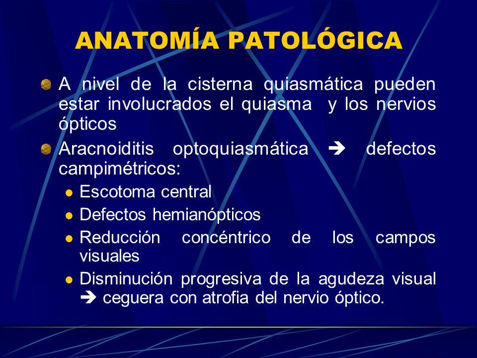 ANATOMÍA PATOLÓGICA A nivel de la cisterna quiasmática pueden estar involucrados el quiasma y los nervios ópticos Aracnoiditis optoquiasmática defecto