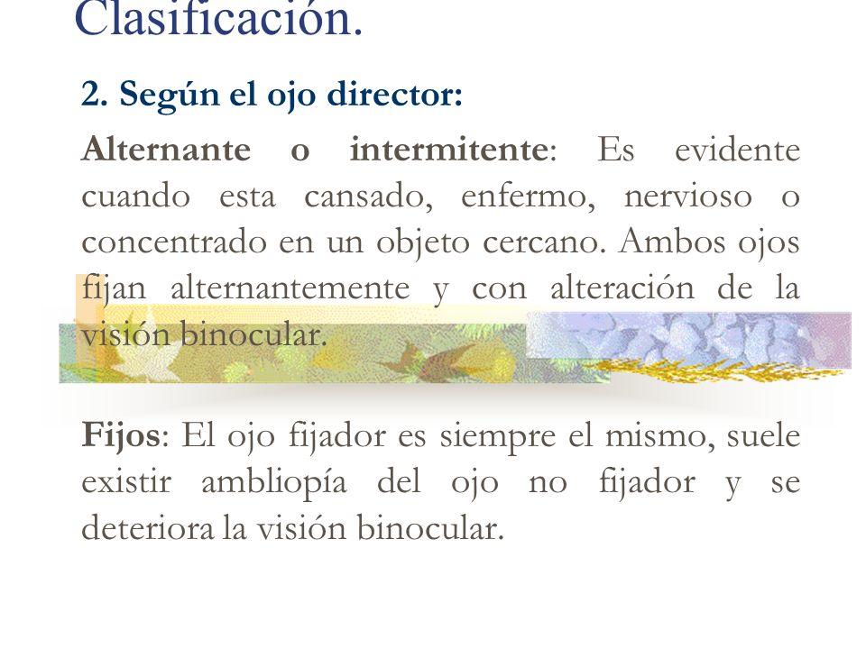 Clasificación. 2. Según el ojo director: Alternante o intermitente: Es evidente cuando esta cansado, enfermo, nervioso o concentrado en un objeto cerc