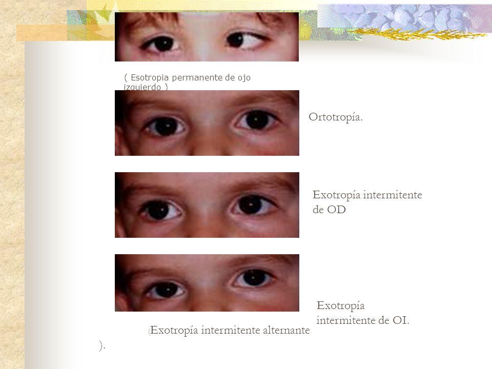 ( Esotropia permanente de ojo izquierdo ) Ortotropía. Exotropía intermitente de OD Exotropía intermitente de OI. ( Exotropía intermitente alternante )