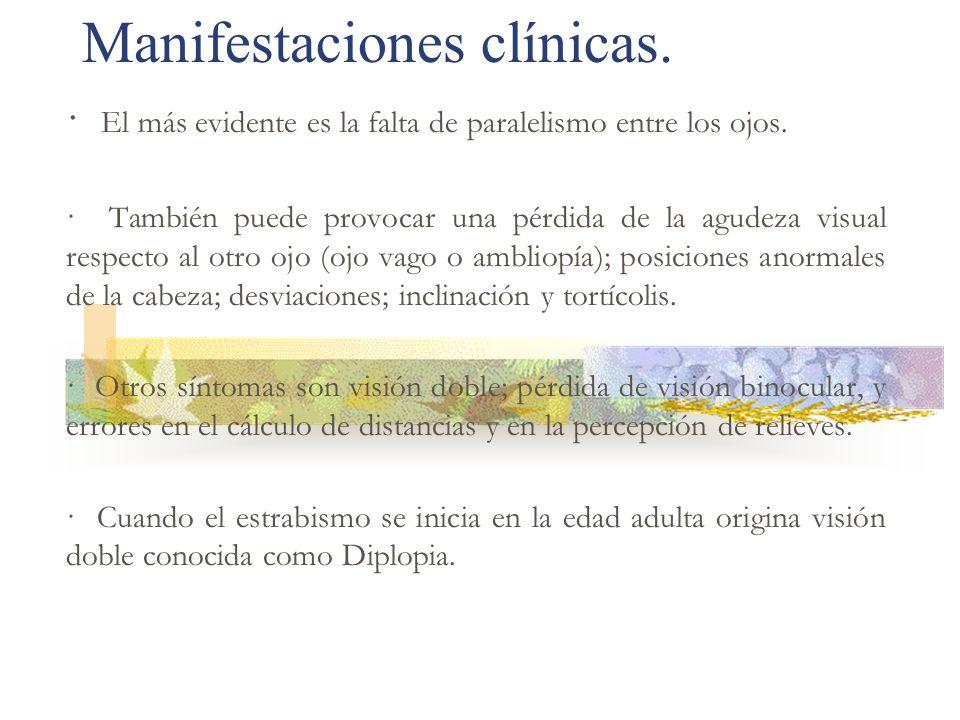 Manifestaciones clínicas. · El más evidente es la falta de paralelismo entre los ojos. · También puede provocar una pérdida de la agudeza visual respe