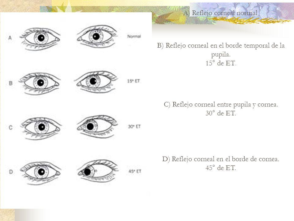 A) Reflejo corneal normal B) Reflejo corneal en el borde temporal de la pupila. 15° de ET. C) Reflejo corneal entre pupila y cornea. 30° de ET. D) Ref