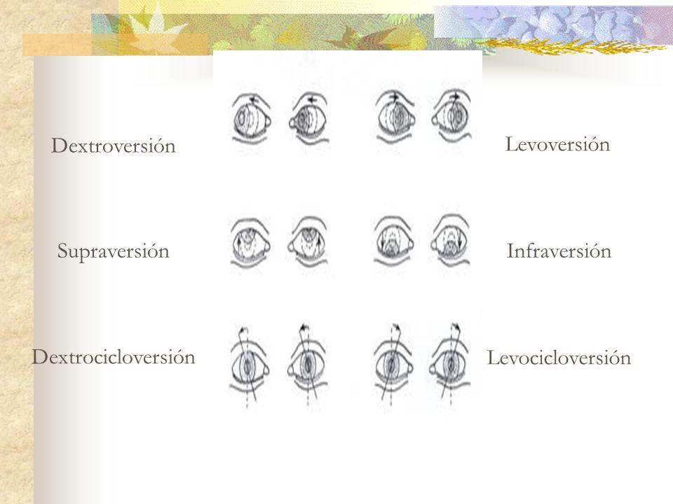 Dextroversión Levoversión SupraversiónInfraversión DextrocicloversiónLevocicloversión