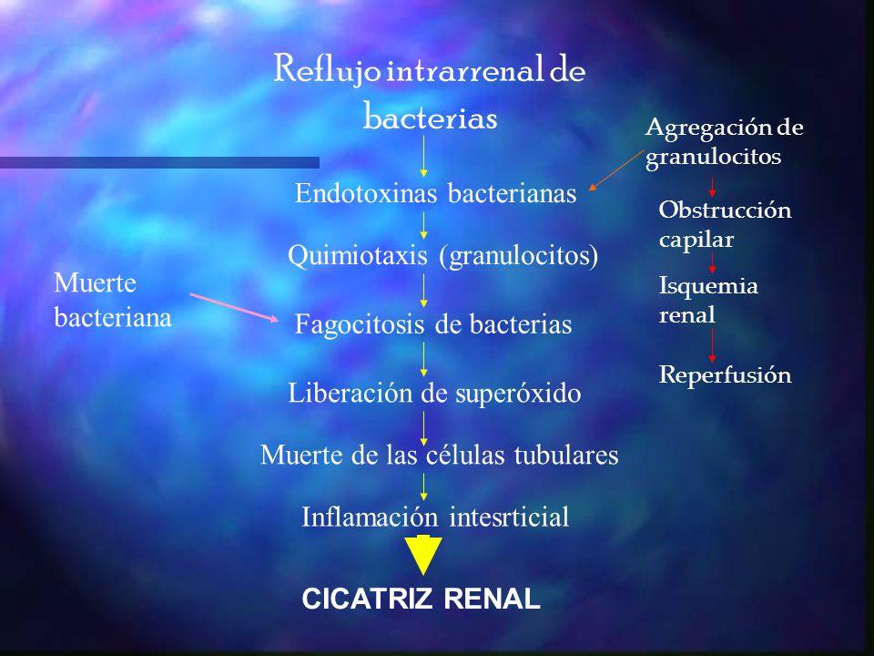 CLASIFICACIÓN PIELONEFRITIS CRÓNICA PIELONEFRITIS CRÓNICA PIELONEFRITIS AGUDA PIELONEFRITIS AGUDA Cicatrización pielonefrítica Cicatrización pielonefrítica CISTITIS CISTITIS BACTERIURIA ASINTOMÁTICA BACTERIURIA ASINTOMÁTICA Cultivo de orina positivo en un niño sin manifestaciones de infección y es exclusivo en niños.