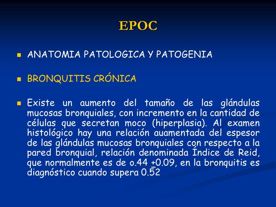EPOC ANATOMIA PATOLOGICA Y PATOGENIA BRONQUITIS CRÓNICA Existe un aumento del tamaño de las glándulas mucosas bronquiales, con incremento en la cantid