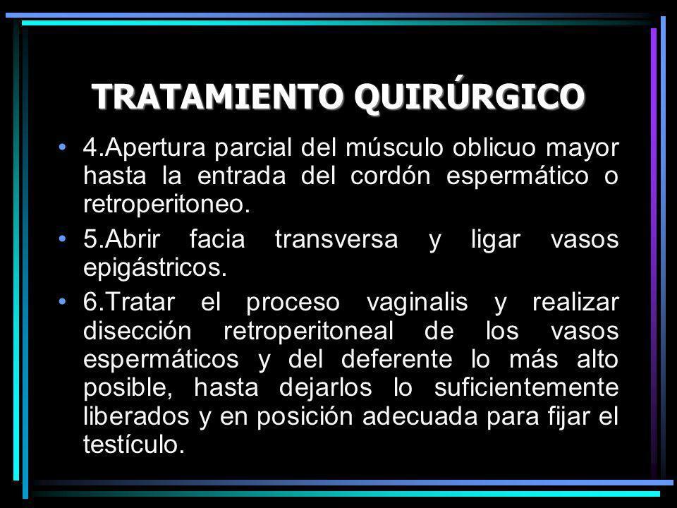 TRATAMIENTO QUIRÚRGICO 4.Apertura parcial del músculo oblicuo mayor hasta la entrada del cordón espermático o retroperitoneo. 5.Abrir facia transversa