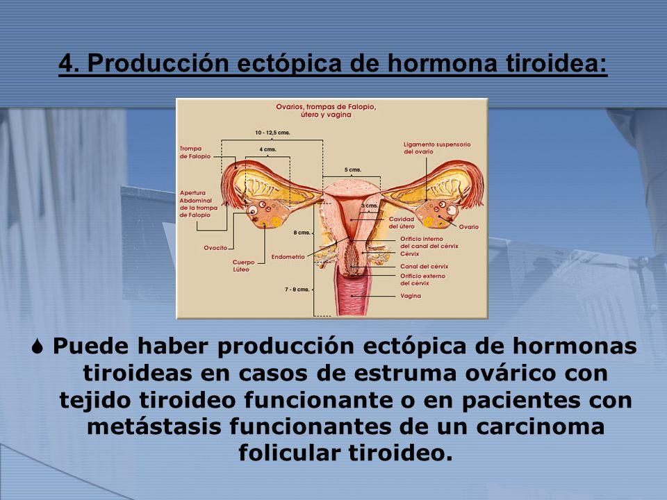 4. Producción ectópica de hormona tiroidea: Puede haber producción ectópica de hormonas tiroideas en casos de estruma ovárico con tejido tiroideo func