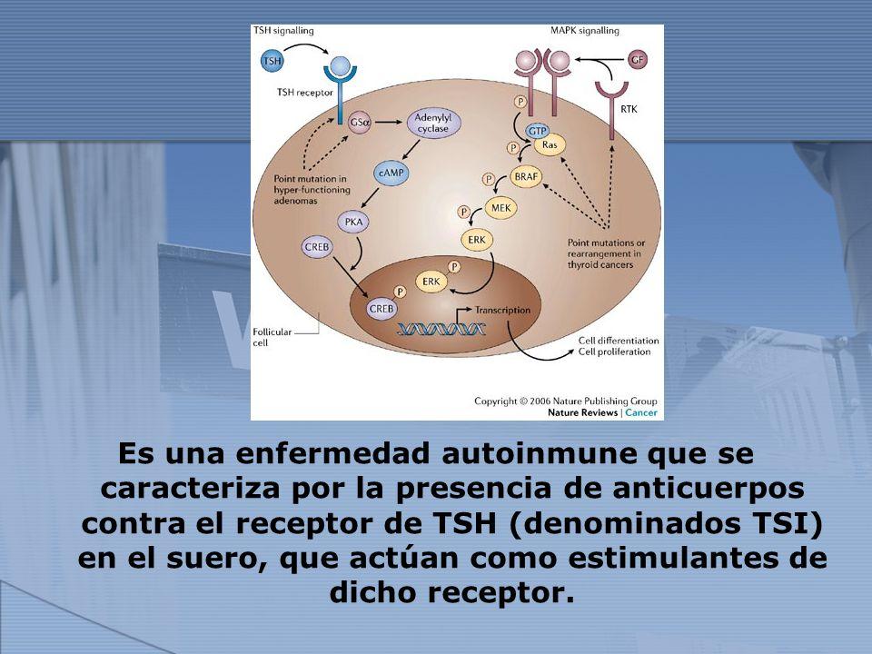 Es una enfermedad autoinmune que se caracteriza por la presencia de anticuerpos contra el receptor de TSH (denominados TSI) en el suero, que actúan como estimulantes de dicho receptor.
