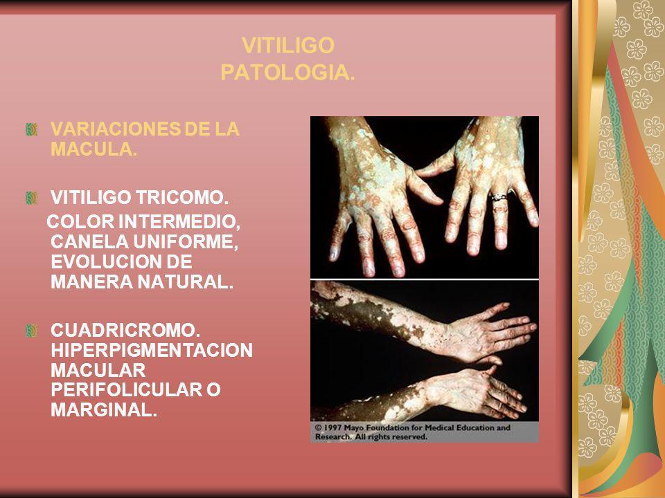 VITILIGO PATOLOGIA. VARIACIONES DE LA MACULA. VITILIGO TRICOMO. COLOR INTERMEDIO, CANELA UNIFORME, EVOLUCION DE MANERA NATURAL. CUADRICROMO. HIPERPIGM