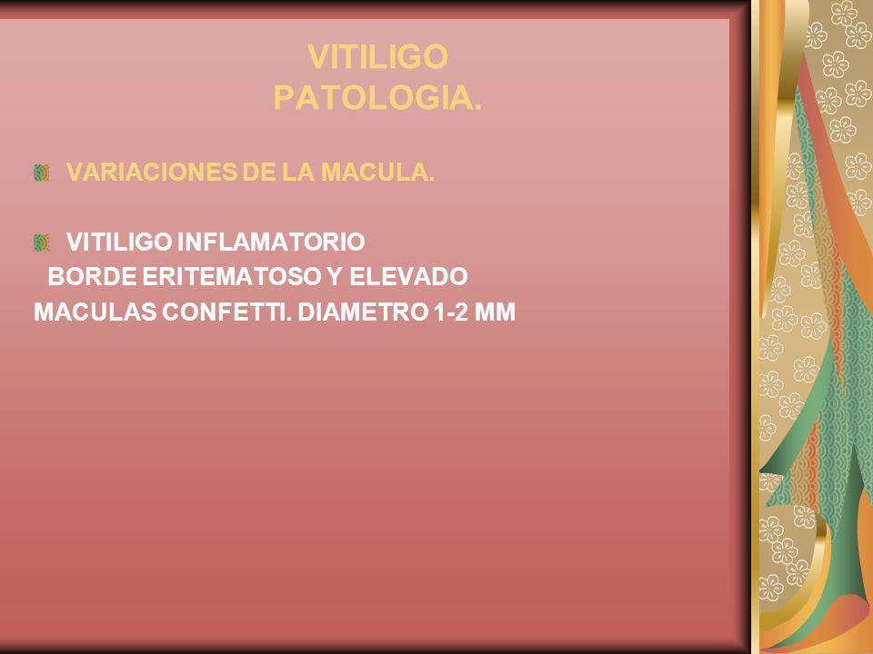 VITILIGO PATOLOGIA. VARIACIONES DE LA MACULA. VITILIGO INFLAMATORIO BORDE ERITEMATOSO Y ELEVADO MACULAS CONFETTI. DIAMETRO 1-2 MM