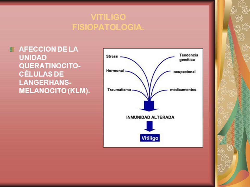 VITILIGO FISIOPATOLOGIA. AFECCION DE LA UNIDAD QUERATINOCITO- CÉLULAS DE LANGERHANS- MELANOCITO (KLM).
