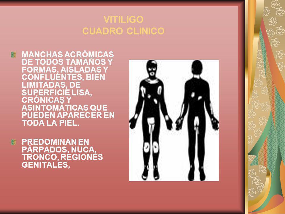 VITILIGO CUADRO CLINICO MANCHAS ACRÓMICAS DE TODOS TAMAÑOS Y FORMAS, AISLADAS Y CONFLUENTES, BIEN LIMITADAS, DE SUPERFICIE LISA, CRÓNICAS Y ASINTOMÁTI