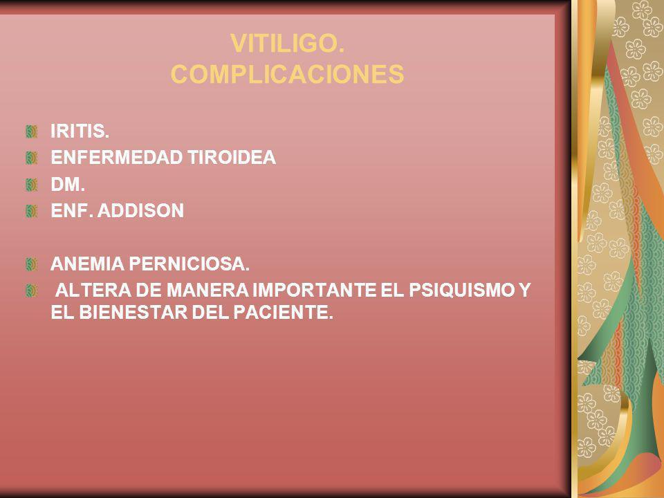 VITILIGO. COMPLICACIONES IRITIS. ENFERMEDAD TIROIDEA DM. ENF. ADDISON ANEMIA PERNICIOSA. ALTERA DE MANERA IMPORTANTE EL PSIQUISMO Y EL BIENESTAR DEL P