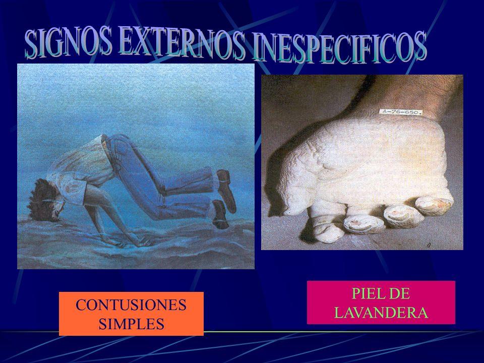 PIEL DE LAVANDERA CONTUSIONES SIMPLES