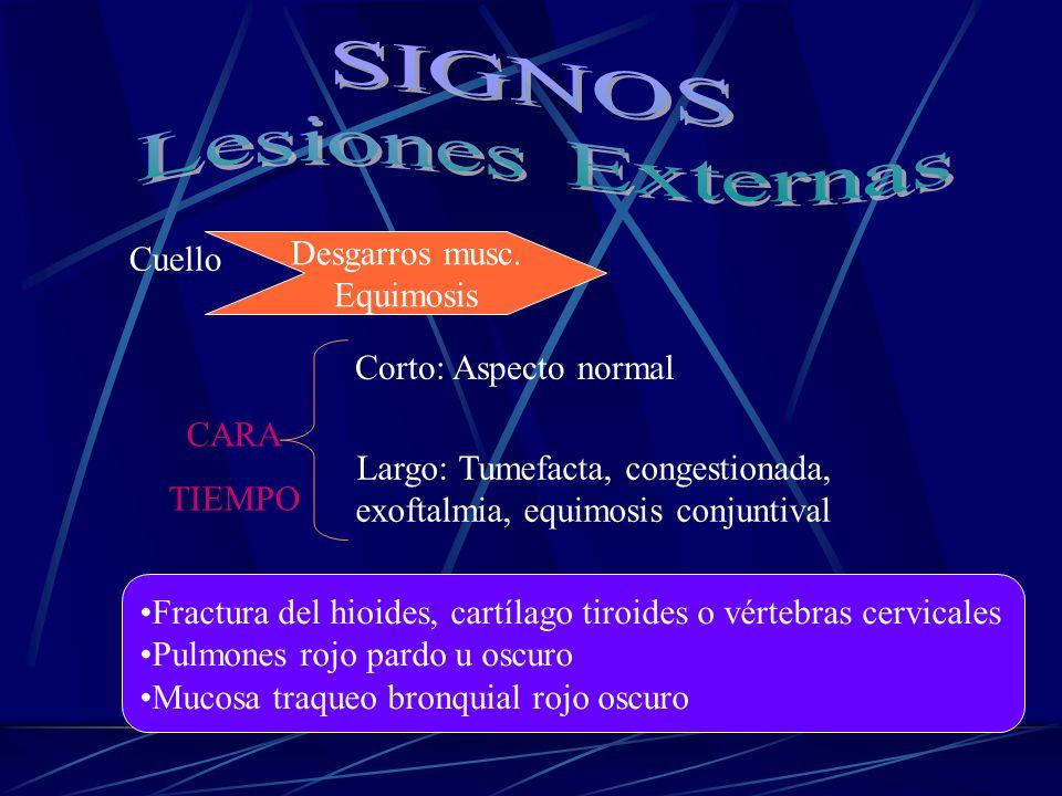 Cuello Desgarros musc. Equimosis CARA TIEMPO Corto: Aspecto normal Largo: Tumefacta, congestionada, exoftalmia, equimosis conjuntival Fractura del hio