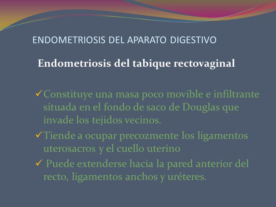 ENDOMETRIOSIS DEL APARATO DIGESTIVO Endometriosis del tabique rectovaginal Constituye una masa poco movible e infiltrante situada en el fondo de saco