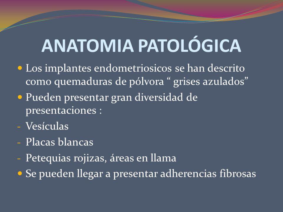ANATOMIA PATOLÓGICA Los implantes endometriosicos se han descrito como quemaduras de pólvora grises azulados Pueden presentar gran diversidad de prese