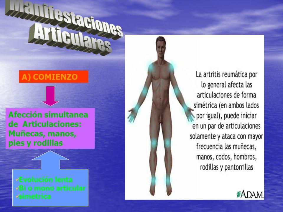 A) COMIENZO Afección simultanea de Articulaciones: Muñecas, manos, pies y rodillas Evolución lenta Bi o mono articular simetrica