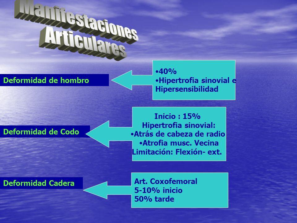 Deformidad de hombro 40% Hipertrofia sinovial e Hipersensibilidad Deformidad de Codo Inicio : 15% Hipertrofia sinovial: Atrás de cabeza de radio Atrof
