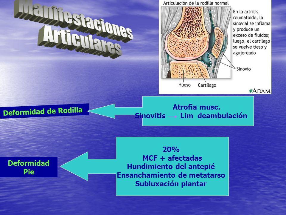 Deformidad de Rodilla Atrofia musc. Sinovitis Lim deambulación Deformidad Pie 20% MCF + afectadas Hundimiento del antepié Ensanchamiento de metatarso