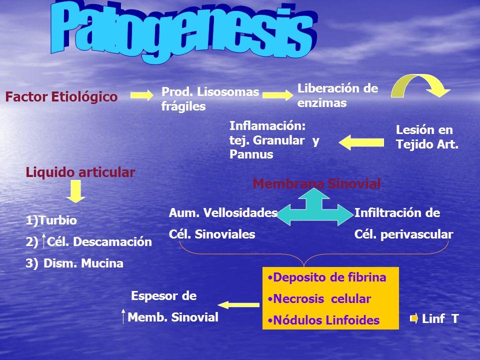 Factor Etiológico Prod. Lisosomas frágiles Liberación de enzimas Lesión en Tejido Art. Inflamación: tej. Granular y Pannus Liquido articular 1)Turbio