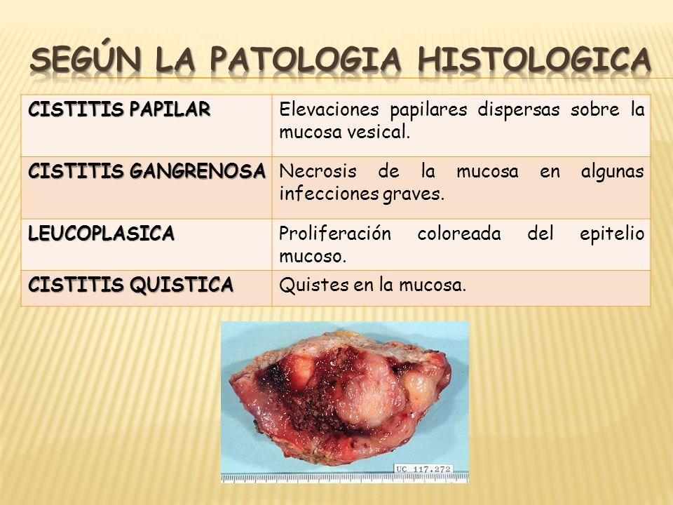 CISTITIS PAPILAR Elevaciones papilares dispersas sobre la mucosa vesical. CISTITIS GANGRENOSA Necrosis de la mucosa en algunas infecciones graves. LEU