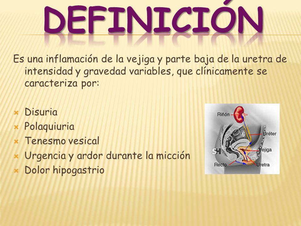 Es una inflamación de la vejiga y parte baja de la uretra de intensidad y gravedad variables, que clínicamente se caracteriza por: Disuria Polaquiuria