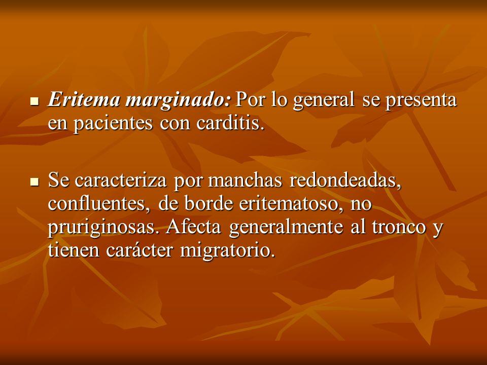 Eritema marginado: Por lo general se presenta en pacientes con carditis. Eritema marginado: Por lo general se presenta en pacientes con carditis. Se c