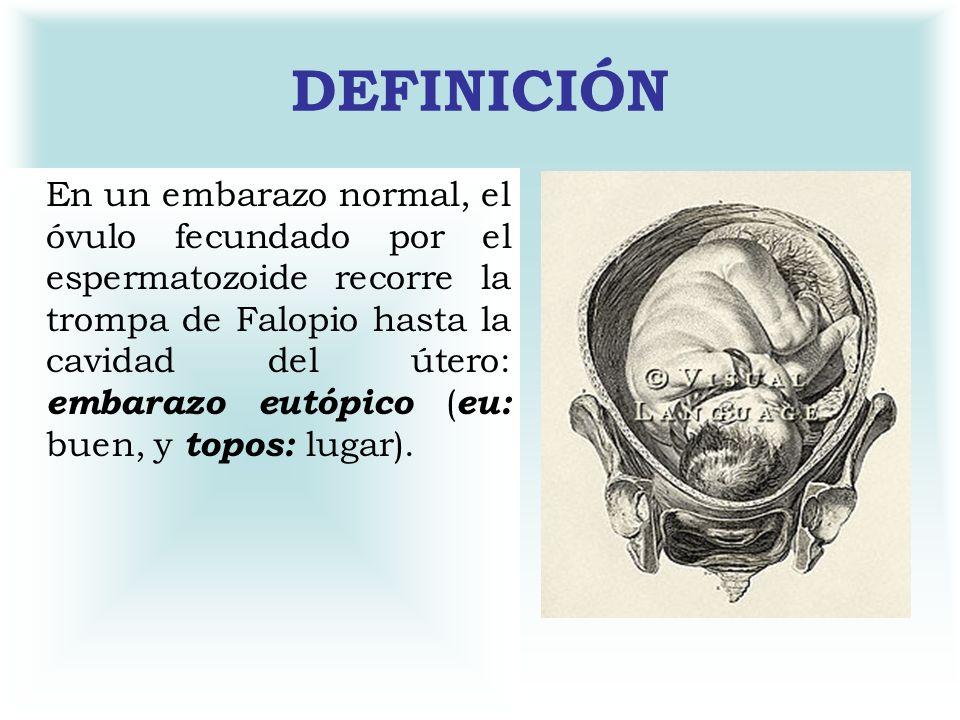 DEFINICIÓN En un embarazo normal, el óvulo fecundado por el espermatozoide recorre la trompa de Falopio hasta la cavidad del útero: embarazo eutópico