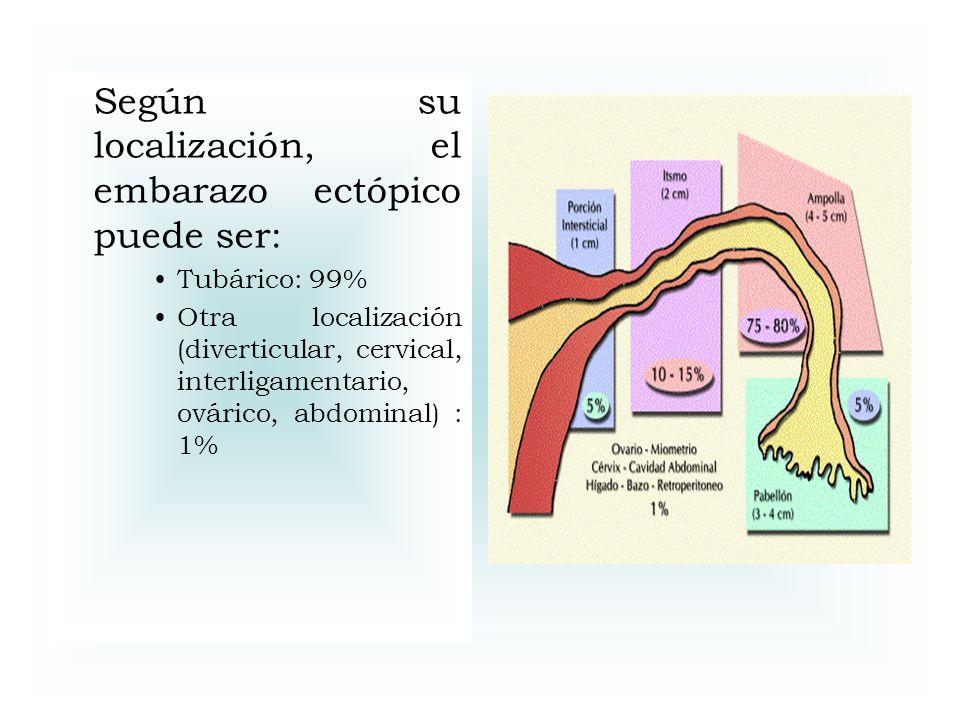 Según su localización, el embarazo ectópico puede ser: Tubárico: 99% Otra localización (diverticular, cervical, interligamentario, ovárico, abdominal)