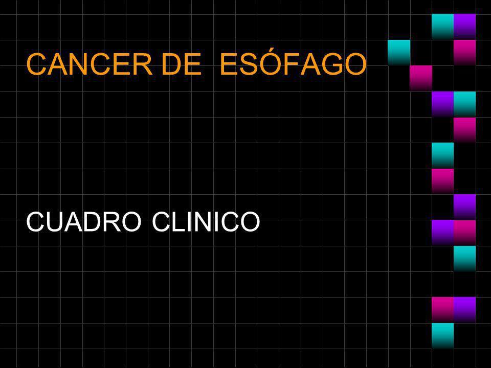 CANCER DE ESÓFAGO CUADRO CLINICO