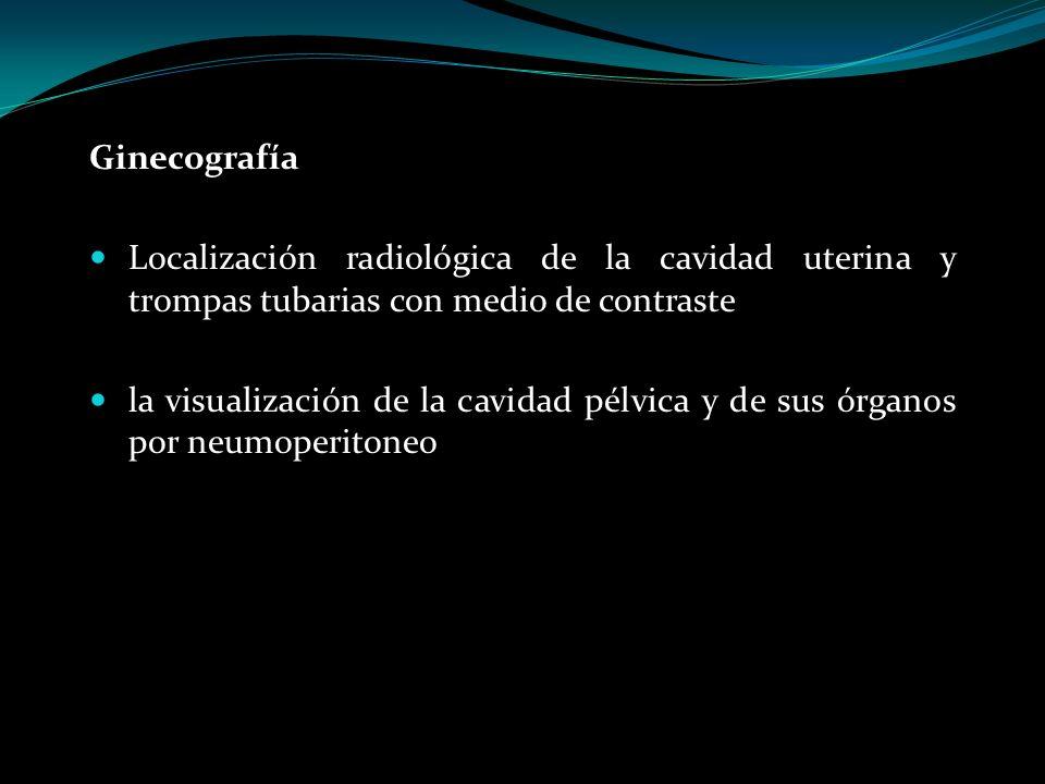 Ginecografía Localización radiológica de la cavidad uterina y trompas tubarias con medio de contraste la visualización de la cavidad pélvica y de sus