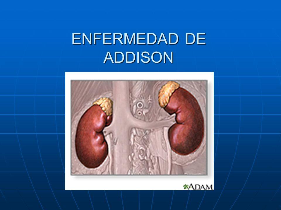 DEFINICION La Enfermedad de Addison es una deficiencia hormonal causada por daño a la glándula adrenal lo que ocasiona una hipofunción o insuficiencia corticosuprarrenal primaria