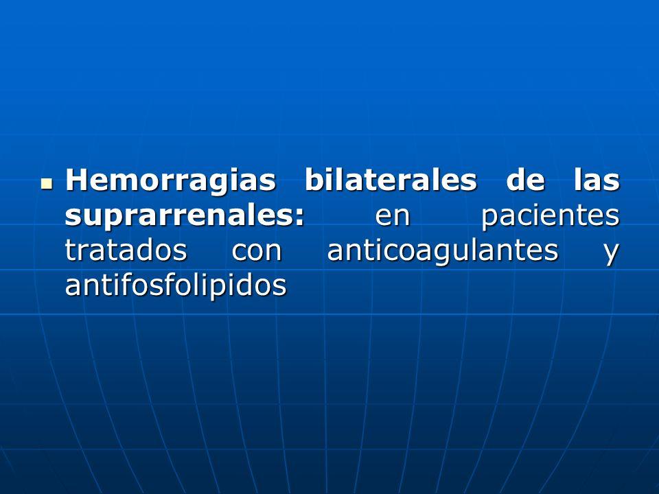 Hemorragias bilaterales de las suprarrenales: en pacientes tratados con anticoagulantes y antifosfolipidos Hemorragias bilaterales de las suprarrenale