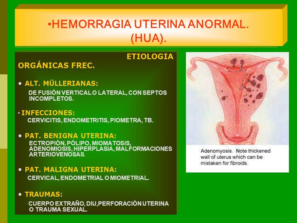 HEMORRAGIA UTERINA ANORMAL. (HUA). ETIOLOGIA ORGÁNICAS FREC. ALT. MÜLLERIANAS: DE FUSIÓN VERTICAL O LATERAL, CON SEPTOS INCOMPLETOS. INFECCIONES: CERV