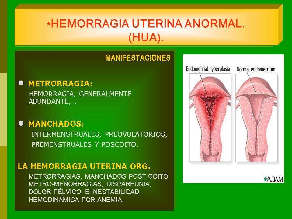 HEMORRAGIA UTERINA ANORMAL. (HUA). MANIFESTACIONES METRORRAGIA: HEMORRAGIA, GENERALMENTE ABUNDANTE,. MANCHADOS: INTERMENSTRUALES, PREOVULATORIOS, PREM