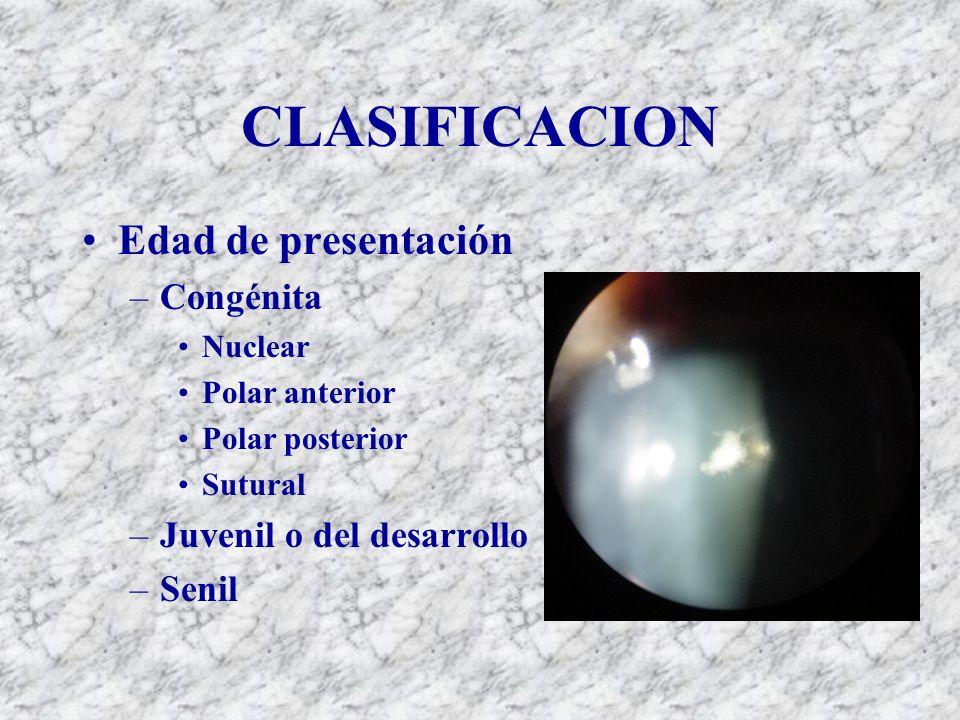 CLASIFICACION Edad de presentación –Congénita Nuclear Polar anterior Polar posterior Sutural –Juvenil o del desarrollo –Senil