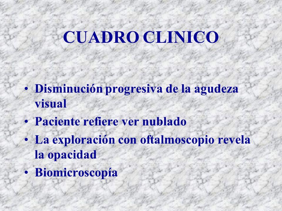 CUADRO CLINICO Disminución progresiva de la agudeza visual Paciente refiere ver nublado La exploración con oftalmoscopio revela la opacidad Biomicrosc